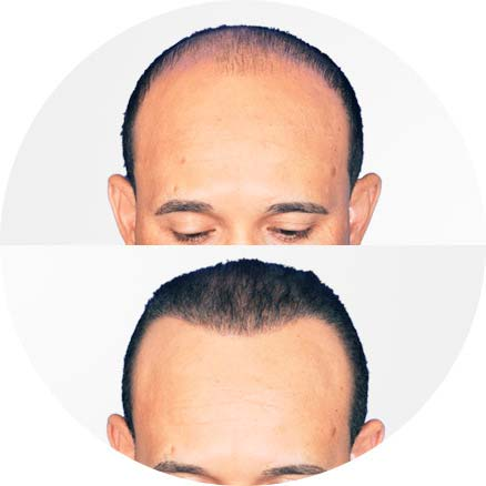 SmartGraft - Before and After Treatment photos - man patient (front view)