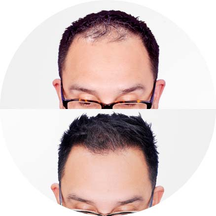 SmartGraft - Before and After Treatment photos - front view (patient)