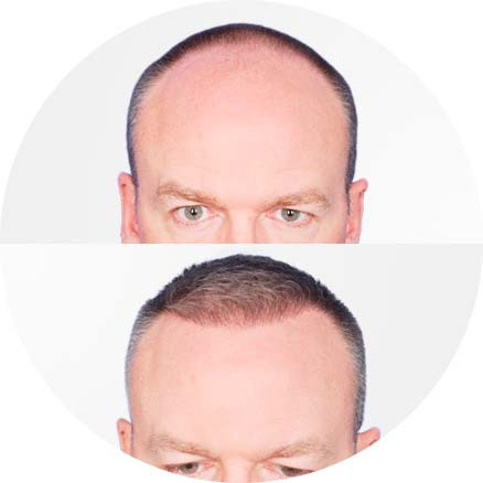 SmartGraft - Before and After Treatment photos - male patient (front view)